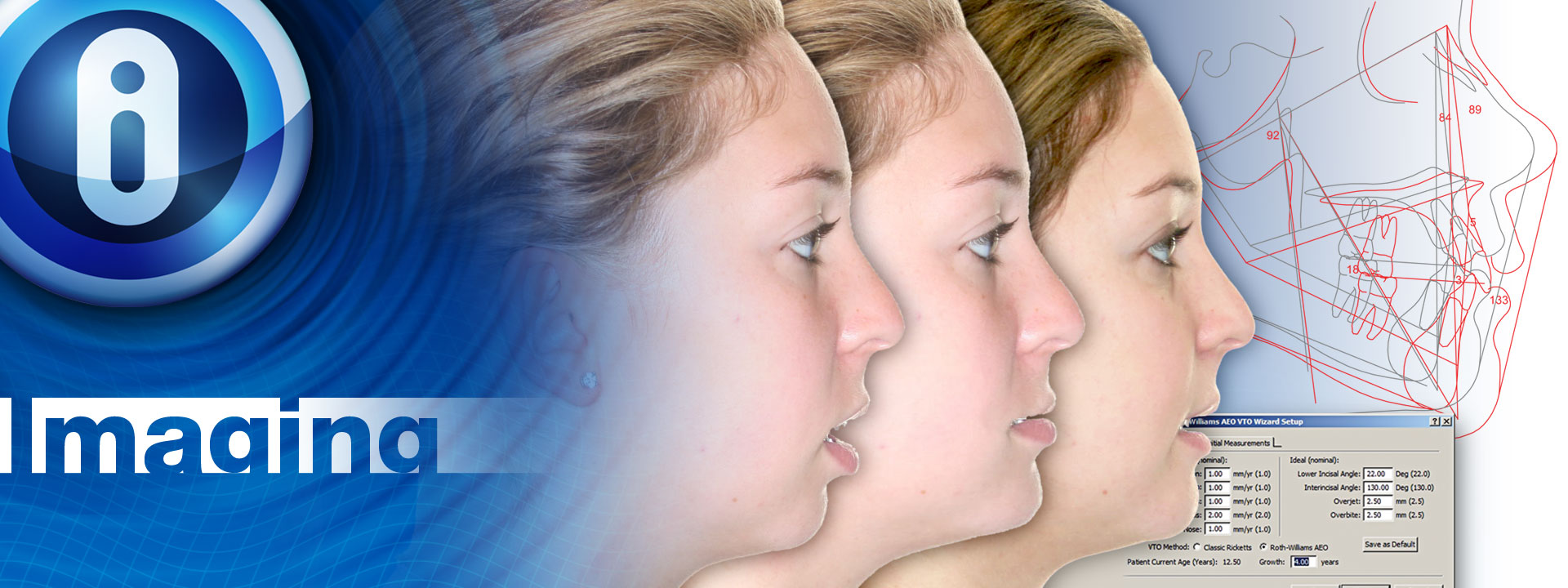 Treatment Simulation | Imaging and 3D Imaging | Orthodontic Imaging ...