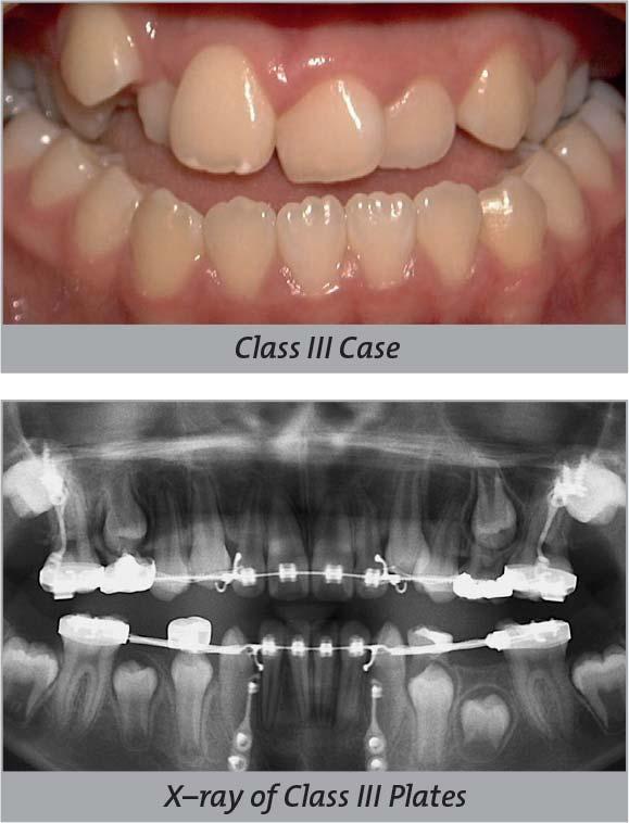 Seminars | Global Leader in Orthodontics | Orthodontic